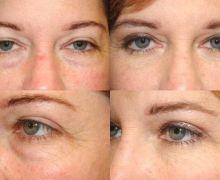 Ögonlockskirurgi - övre och undre