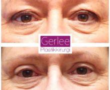 Övre ögonlocksplastik utförd på Gerlee Plastikkirurgi i Helsingborg.