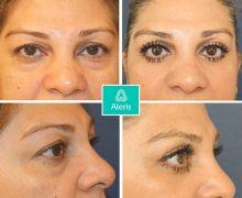 Övre ögonlocksplastik utförd på Aleris Plastikkirurgi