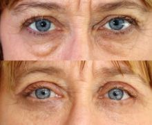 Ögonlocksplastik vid påsar under ögonen