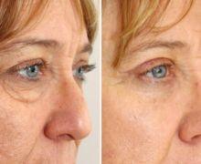 Ögonlocksoperation av övre och undre ögonlocken