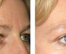 Ögonlockskirurgi övre ögonlock