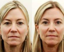 Före och efter ögonlocksplastik