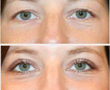 Efterbild från en övre ögonlocksoperation