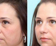 Före och efter ögonlocksoperation