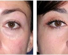 ögonlocksoperation före efter