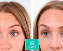 """Behandling av pannrynkor med botox utförd på Aleris. Patienten """"lyfter"""" pannan på båda bilderna."""