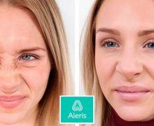 Botoxbehandling av rynkor runt näsan på Aleris.