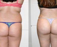 Bild fettransplantation till rumpan