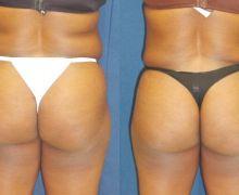 Brazilian buttlift med fettransplantation