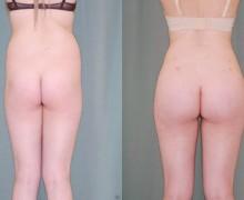 Resultat av att transplantera fett till rumpan