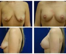 brostimplantat-brostlyft-33