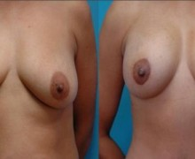 brostimplantat-lyft