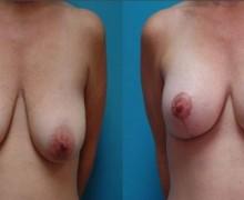 brostimplantat-med-brostlyft