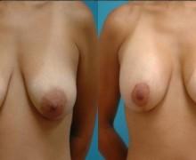 brostlyft-brostimplantat