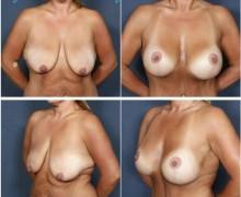 brostlyft-med-brostimplantat