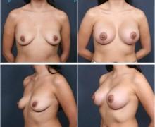 brostlyft-med-brostimplantat2