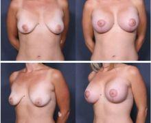 brostlyft-med-brostimplantat3