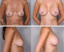 brostlyft-med-brostimplantat4