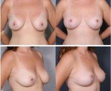Bröstlyftning
