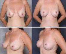 Före och efterbild bröstlyft
