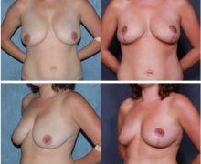 Bild av bröstlyft