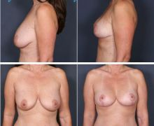 Bröstlyft bild