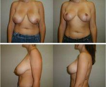 Efterbild bröstlyft