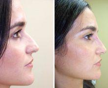Filler för rakare näsa