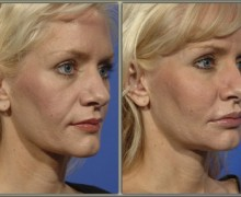 fettinjektioner-ansikte