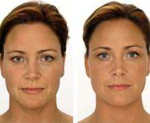 filler-ansiktskonturering