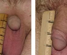 penisforstoring2