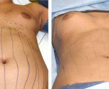 Bröstforstoring egenfett