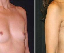 Brostförstoring med fettransplantation